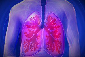 Dieselabgase können zu Asthma, Bronchitis und Lungenkrebs führen.
